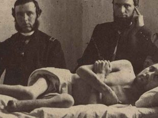 Wounded Warrior: Nightmarish conditions at the Andersonville Prison cost Corporal Calvin Bates his feet. Such trauma often led soldiers to develop what is now known as PTSD.